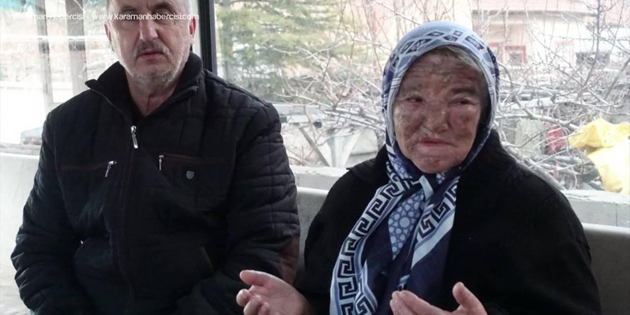 Sırtında Taşıdığı Engelli Kızını Yangında Kurtaramanın Üzüntüsünü Yaşıyor