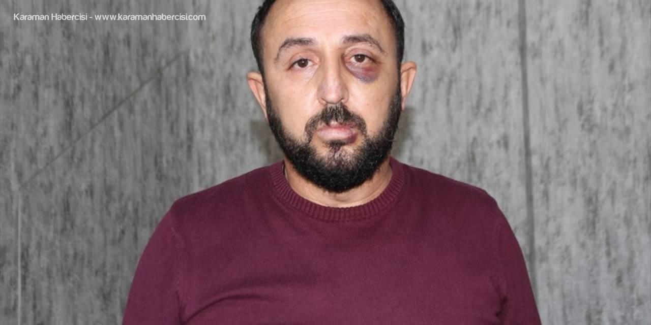 Antalya'da Emlakçıyı Darbettiği İddia Edilen Okul Müdürü Hakkında Soruşturma