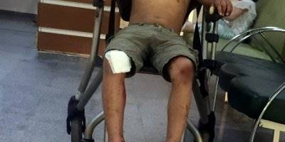 Konya'da Motosikletten Düşen Çocuk Hastanelik Oldu