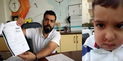 Mersin'de Kreşte 3 Yaşındaki Çocuk Darp Edildi