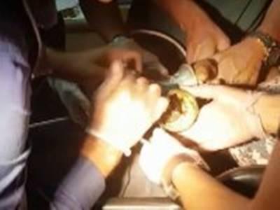 Aksaray'da Bir Vatandaş Parmaklarını Kaptırdı